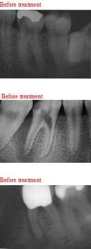 Before Root Canal Treatment